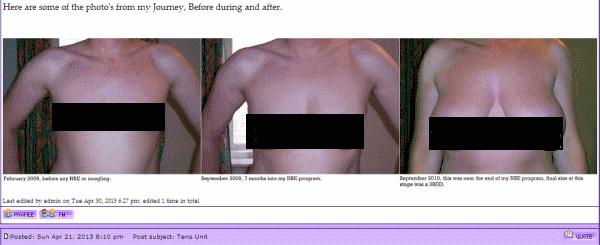 male breast enlargement before and after photos